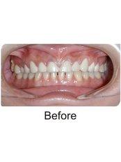 Dental Bridges - International Dental Clinic