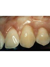 Bone Graft  - International Dental Clinic