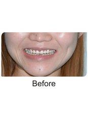 Dental Crowns - International Dental Clinic