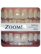 Zoom! Teeth Whitening - SunnyView Dental