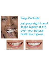 Snap-On Smile™ - SunnyView Dental