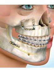 Mandibular Sagittal Split Osteotomy - Premier Dental Care Center