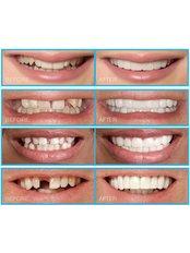 Snap-On Smile™ - Premier Dental Care Center