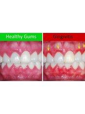 Gingivitis Treatment - Clínica Dental O.C.I Liberia