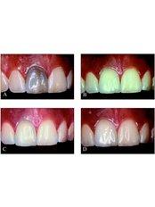Internal Tooth Bleaching - Clínica Dental O.C.I Liberia