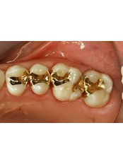 Porcelain Inlay or Onlay - Clínica Dental O.C.I Liberia
