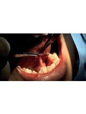 Frenectomy - Clínica Dental O.C.I Liberia