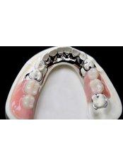Chrome Dentures - Clínica Dental O.C.I Liberia