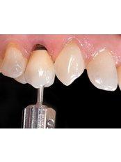 Dental Implants - Clínica Dental O.C.I Liberia
