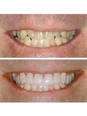 Porcelain Veneers - Clínica Dental O.C.I Liberia