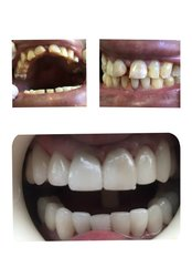 Full Mouth Rehabilitation - Clínica Dental O.C.I Liberia