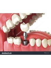 Dental Implants - Clear Choice