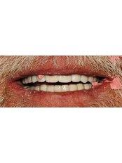 After a full implant rehabilitation - Jehova Rafa Dental Center