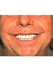 Full mouth rehabilitation in zirconium crowns - Jehova Rafa Dental Center