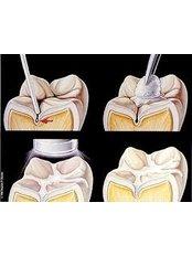 Dental Sealant - Dental Solutions Tamarindo
