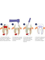 Incisor Root Canal - Dental Solutions Tamarindo