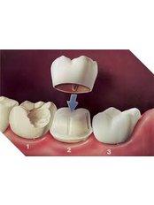 Dental Crowns - Dental Solutions Tamarindo