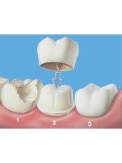 Resin Crown - Dental Solutions Tamarindo