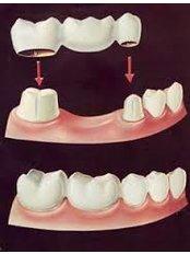 Dental Bridges - Dental Solutions Tamarindo