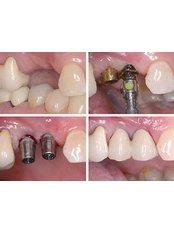 Implant Bridge - Dentivo d.o.o