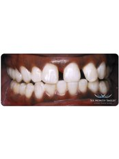 Six Month Smiles™ - Ordinacija dentalne medicine Milenko Subotić
