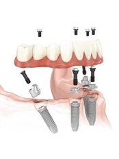 All-on-4 Dental Implants - Ordinacija dentalne medicine Milenko Subotić