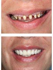 Dental Bridges - Trident