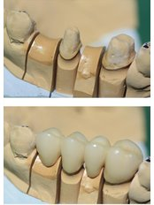 Dental Bridges - Trident