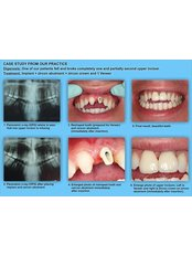 Dental Implants - Trident