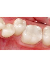 White Filling - Dental Care Croatia