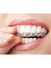 Smilelign™ - Clear Aligners - Dental Care Croatia