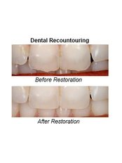 Teeth Contouring and Reshaping - Dental Care Croatia