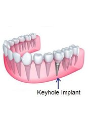 Keyhole Dental Implants (on top of crown) - Dental Care Croatia
