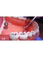 Temporary Filling - Dental Care Croatia