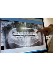 Digital Panoramic Dental X-Ray - Dental Care Croatia