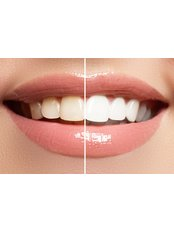 Chemical Teeth Whitening - Dental Care Croatia