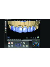 CAD/CAM Dental Restorations - Dental Care Croatia