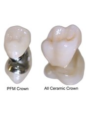PFM (Porcelain/Metal Fused) Crown - Dental Care Croatia
