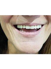 All-on-4 Dental Implants - Dentech