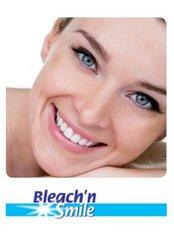 Teeth Whitening onsite - Schütz Dental  - ZDC - Dental Clinic and Implantology Center