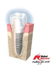 Dental Implants premium NOBEL BIO CARE - B Dent