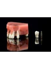 Dental Implants - Mr. Sci. Ivo Matkovic Dr. Med. Dent.