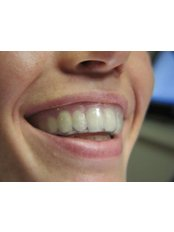 Mouth Guard - Mr. Sci. Ivo Matkovic Dr. Med. Dent.