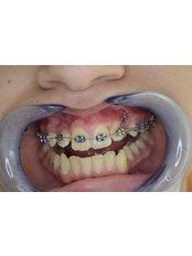 Fixed Orthodontic Appliances - Mr. Sci. Ivo Matkovic Dr. Med. Dent.