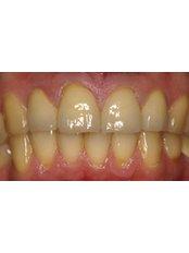 Dental Crowns - Smalto Dental Clinic