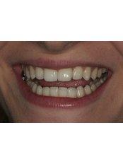 Invisalign™ - Smalto Dental Clinic