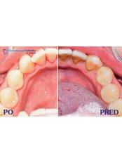 Hygienist Session - Dental clinic  Vyhlídka