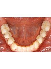 Dental Bridges - Punta Cana Oral Health
