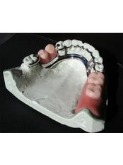 Removable Partial Dentures - Hispadent - Jose Alonso MD, DDS, FACS
