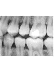 Dental X-Ray - Hispadent - Jose Alonso MD, DDS, FACS
